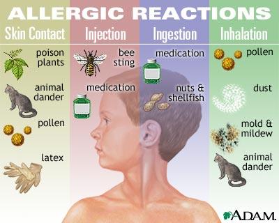 Allergy Image AZ