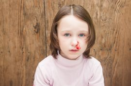 the girl bleeding from the nose