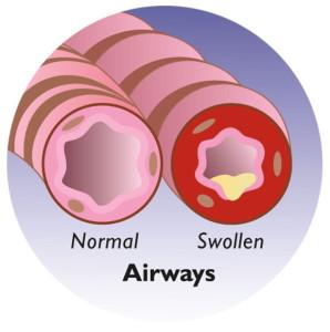 airways swollen