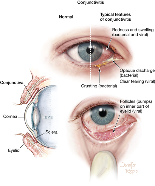 Allergic Conjunctivitis Vs Bacterial Pictures To Pin On: Conjunctivitis - Childrens Health